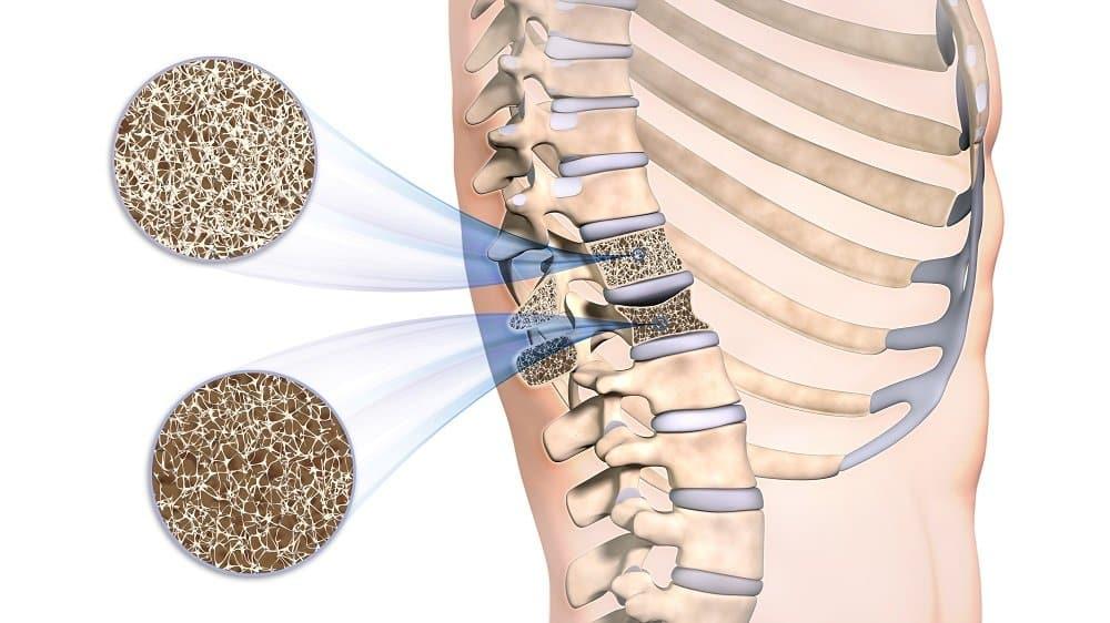 Soja Paastoa gegen Osteoporose